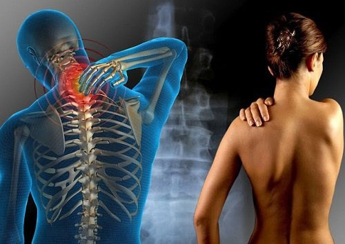 Resultado de imagem para esclerose múltipla